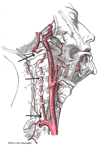 picture of vertebral artery treatment
